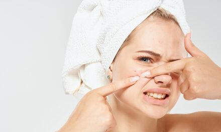 Le cbd et l'intérêt dermatologique : Acné, Eczéma et Psoriasis